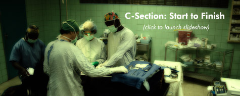 C-Section: Start to Finish